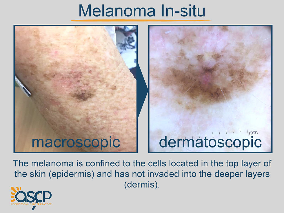Malignant Skin Lesions Advanced Skin Cancer Practice Plastic Surgery Cairns